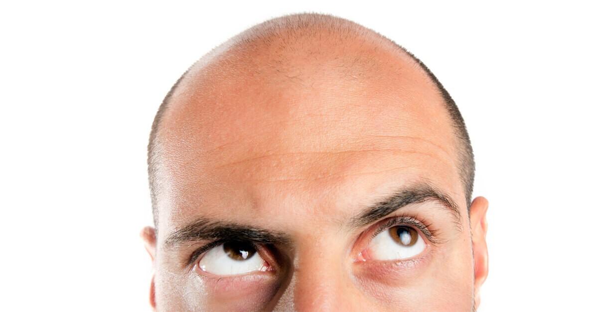 wypadanie włosów u mężczyzn